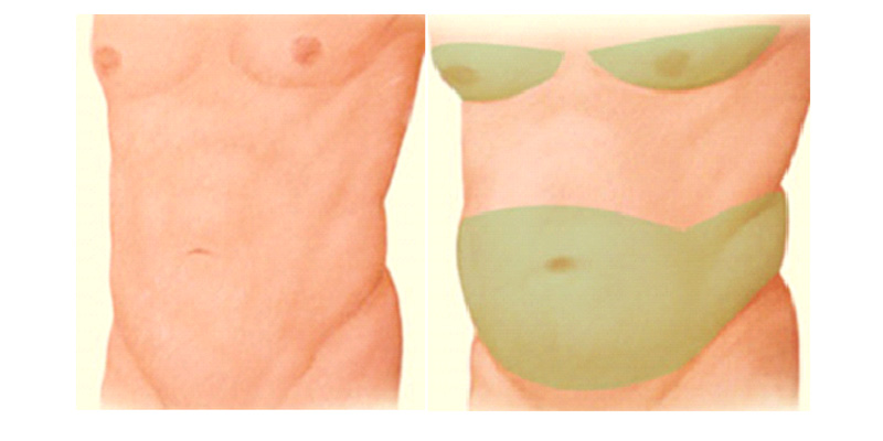 vaser liposuction_3
