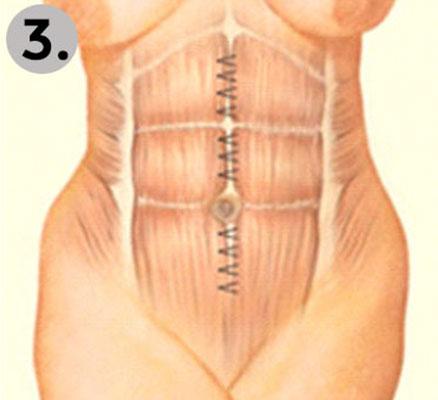 Bichektomie berühmt vor und nach dem Abnehmen
