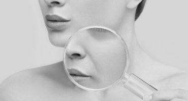Nazolabial Kıvrımlar nasıl tedavi edilir
