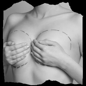 göğüs estetiği fiyatları