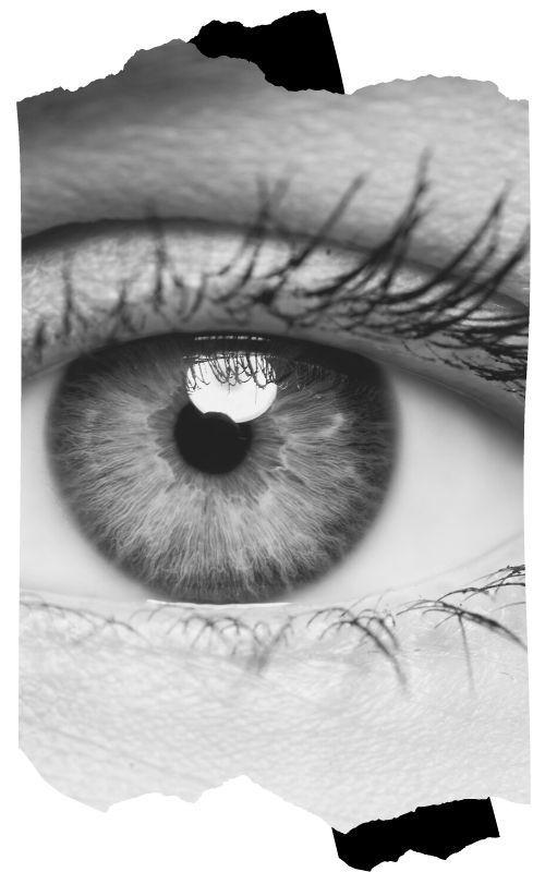 blefaroplasty yani Göz kapağı estetiği - Blefaroplasti