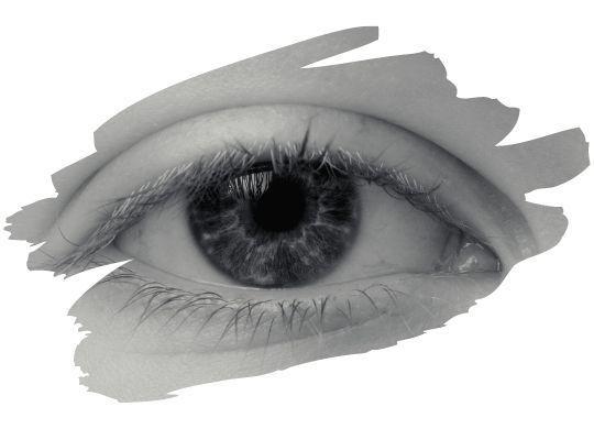 göz kapağı estetiği ameliyatı