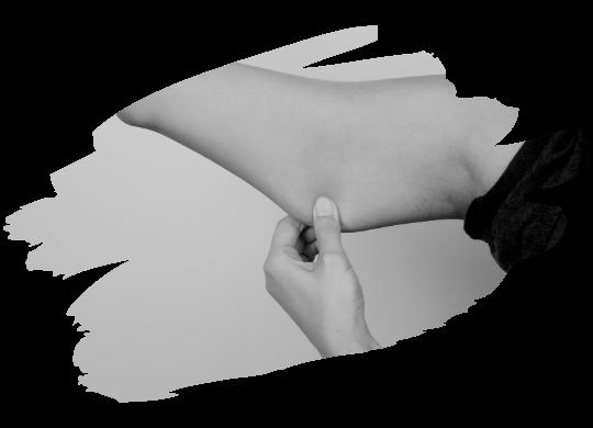 kol germe estetiği