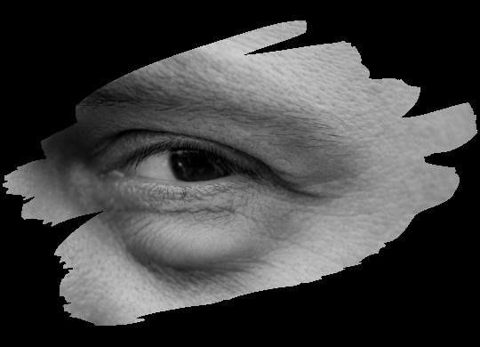 göz kapağı torbaları tedavisi